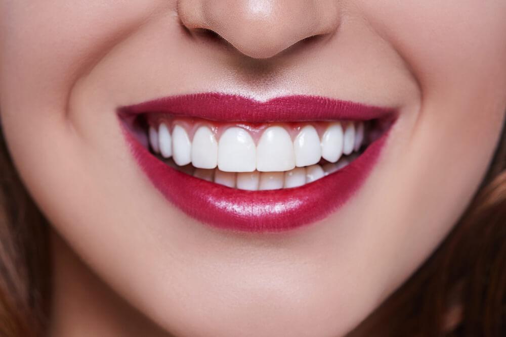 Винир зуб зубной